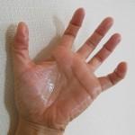 手のひらの汗が急に… 病気の心配は? 対策はある!?